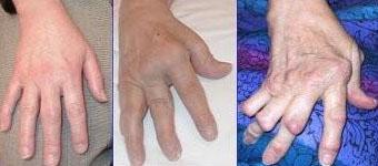 artritis-sintomas-guia-1