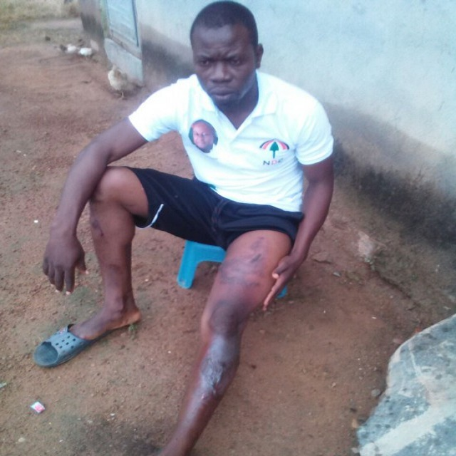 Man 'bathed' with hot water for campaigning for Mahama