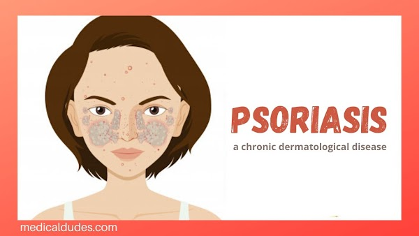 Psoriasis: Definition, Types, Sign & symptoms and More (in hindi)