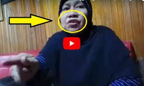 Astagfirullah, Guru Berusia 59 Tahun Ini Ditampar Wali Murid Hingga Giginya Rontok