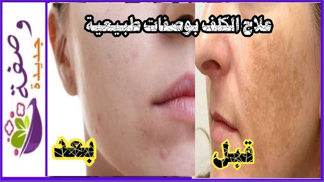 علاج الكلف خلال فترة الحمل، علاج الكلف و التصبغات نهائيا، بديل علاج الليزر الكربوني،علاج الكلف القديم في الوجه، علاج الكلف العميق طبيعيا