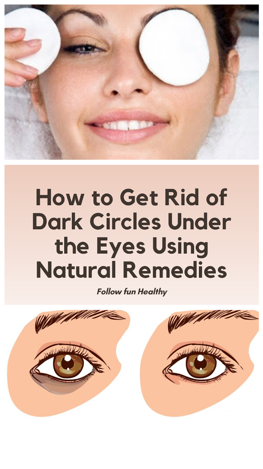 How to Get Rid of Dark Circles Under the Eyes Using ...