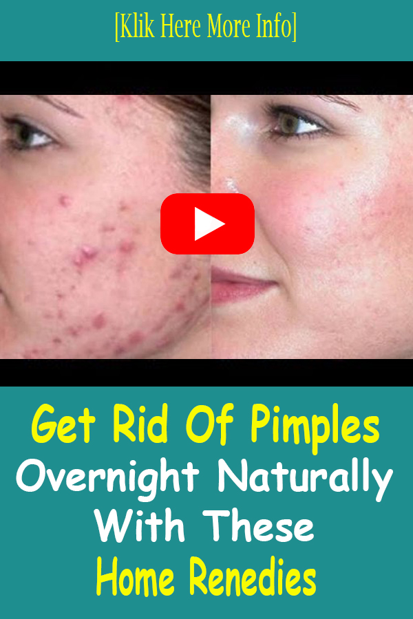 How To Get Rid Of Pimples Overnight At Home - exstremboard