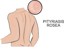 Natural Home Remedies For Pityriasis Rosea