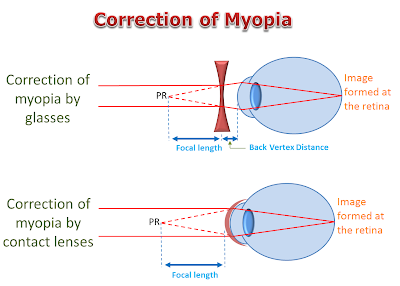 Correction of Myopia by glasses and contact lenses