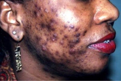 Simple Tricks To Cure Pimples In Just 2 Days... Works Like Magic