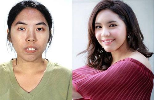 Gadis Thailand Bergigi Tonggos Jadi Cantik Dahsyat