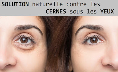 Solution naturelle contre les cernes sous les yeux : bicarbonate de soude