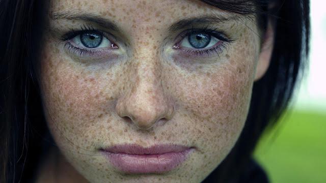 وصفة طبيعية لعلاج النمش نهائيا Freckles.jpeg