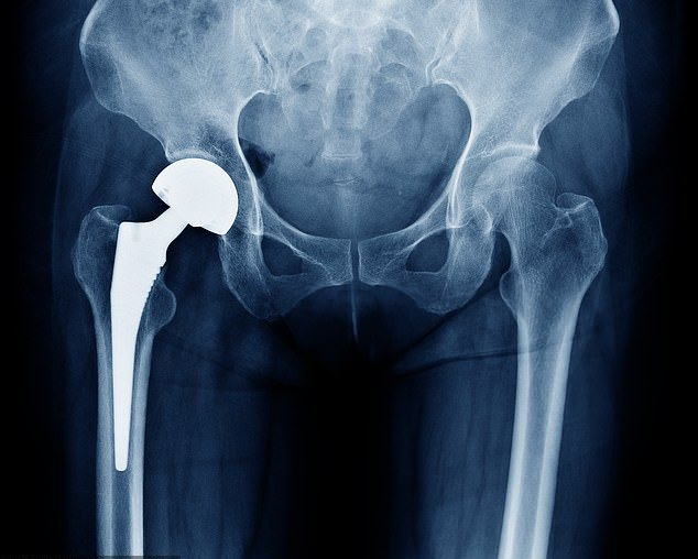 20% of patients waiting for a hip replacement are suffering pain 'worse than DEATH'