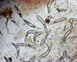 Raspado al microscopio con demodex canis