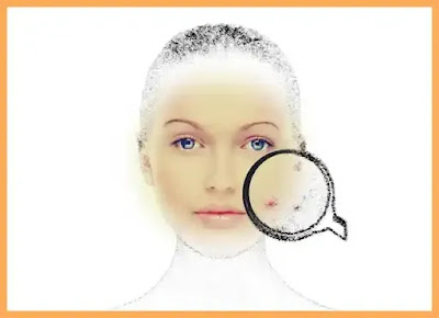 pareri forum diete pentru acnee care funcționează