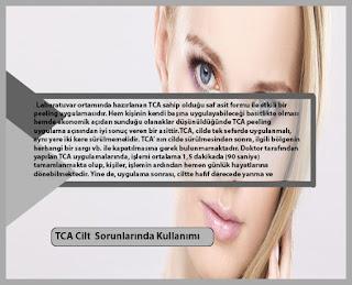 TCA Cilt  Sorunlarında Nasıl Kullanılır  ?