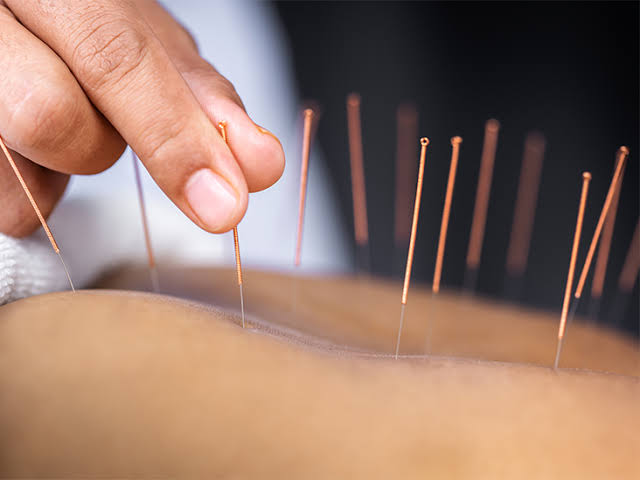 How Acupuncture Can Help Your Body?