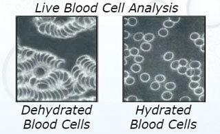 darah yang dehidrasi dan terhidrasi