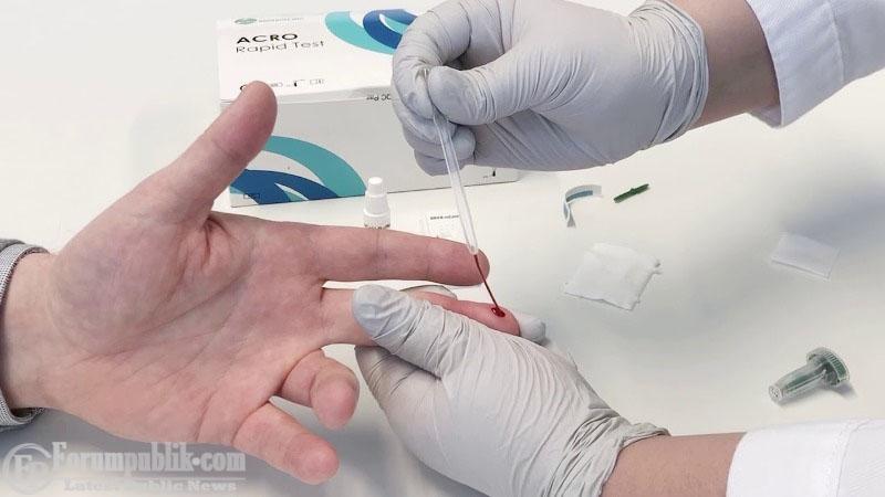 Gugus Tugas Akui  Kebijakan Pemeriksaan Cepat Metode Rapid Test, Dilematis