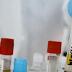 El Afivavir es el primer fármaco antiviral para tratar el coronavirus