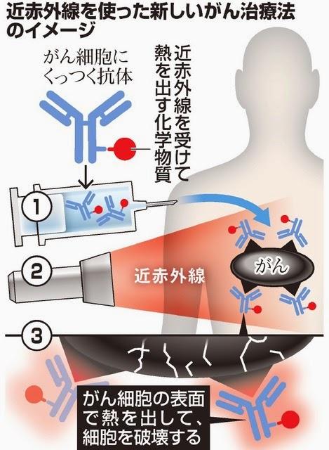 赤外線 光線免疫療法 がん治療法 先進治療法