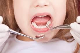 Cara Menyembuhkan Gigi Berlubang Secara Alami Tanpa Dibor Dan Ditambal