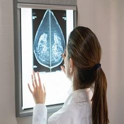 Câncer de mama, MIT desenvolve inteligência artificial para identificar
