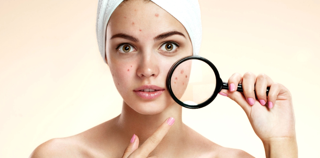 10 Acne Solutions