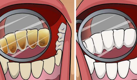 Makanan Ini Bisa Mencerahkan Warna Gigimu