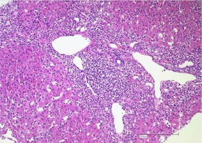 autoimmune_hepatitis_histology