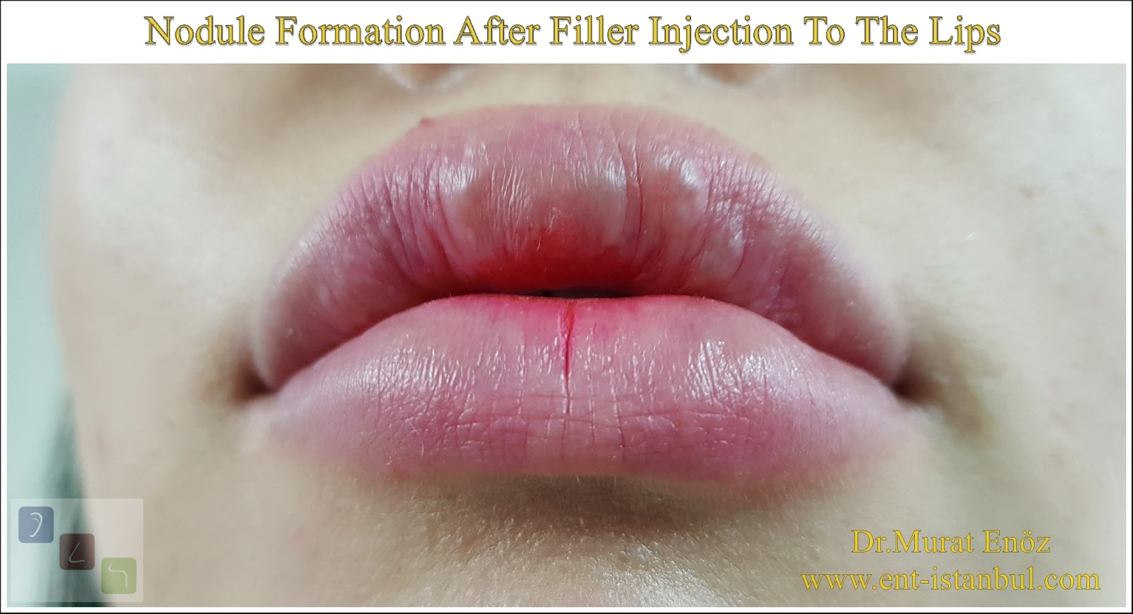 Nodule Formation After Filler Injection To The Lips