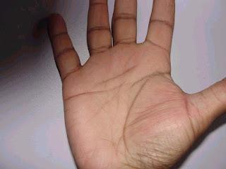 Both Head Line & Heart Line Broken   Palmistry