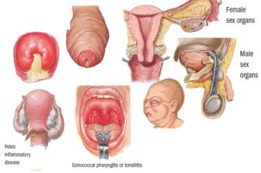 Penyakit pada Sistem Reproduksi Manusia