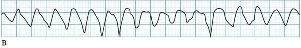 Polymorphic ventricular tachycardia ECG