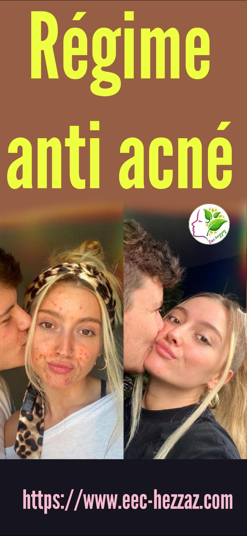 Régime anti acné