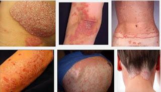Obat Gatal Herbal Tanpa Efek Samping