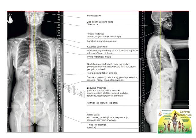 zdravljenje s spiralno stabilizacijo - SPS