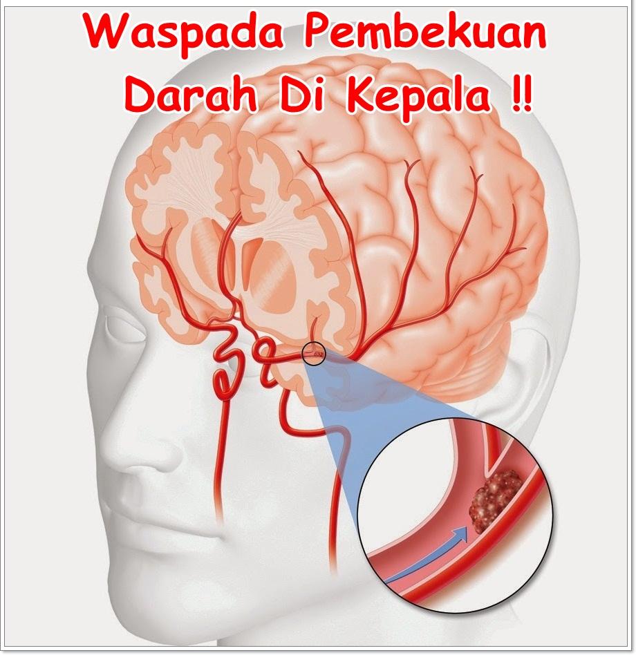 Obat Penghancur Darah Beku Di Kepala Terampuh