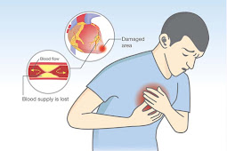 Symptoms for Heart Attack & Warning Signs and Treatment & Recovery
