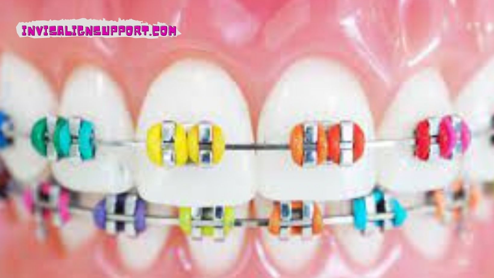 Cute Braces Colors for Girls?