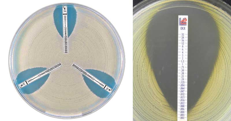 A paraziták testének megtisztításának módszerei, Méregtelenítés - az egészséghez szükséges eljárás