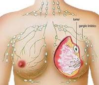 Penyebab Kanker Payudara PSYCHOLOGYMANIA