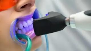 كيفية تبييض الاسنان بالليزر.