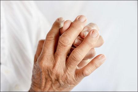 Vatarakta, Gout, Gouty arthritis