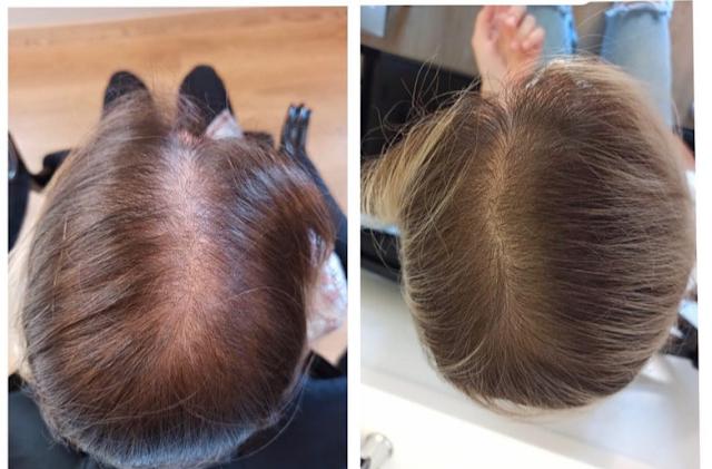 3 traitements à base de l'ail à domicile pour faire repousser les cheveux efficacement