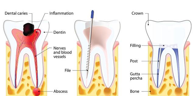 Kenapa perawatan saluran akar gigi bikin ngilu?