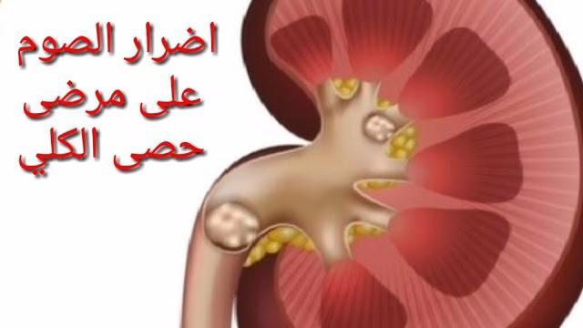 اضرار الصوم على مرضى حصى الكلي