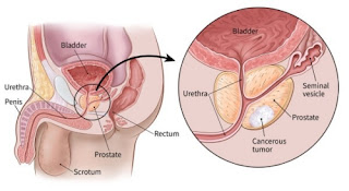 Prostate Cancer, Prostate Cancer Treatment