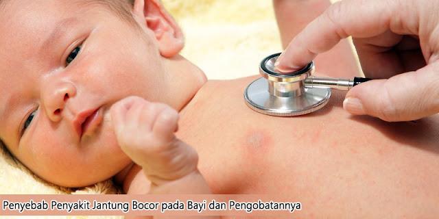 Penyebab Penyakit Jantung Bocor Pada Bayi dan Pengobatannya