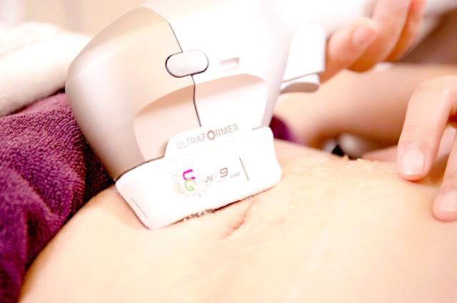 李咏馨醫師使用第三代海芙音波9mm鉑金探頭,深入皮下,改善脂肪性鬆弛