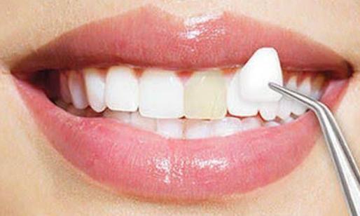 Dokter Spesialis Prostodonsia di Jakarta Barat: Inilah Fakta Mengenai Veneer Gigi yang Perlu Anda Ketahui