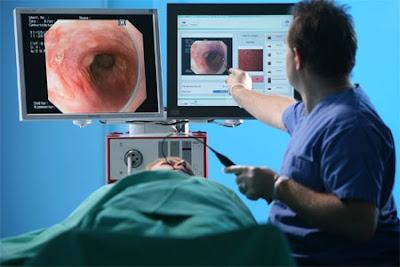 endoscopia-digestiva-alta
