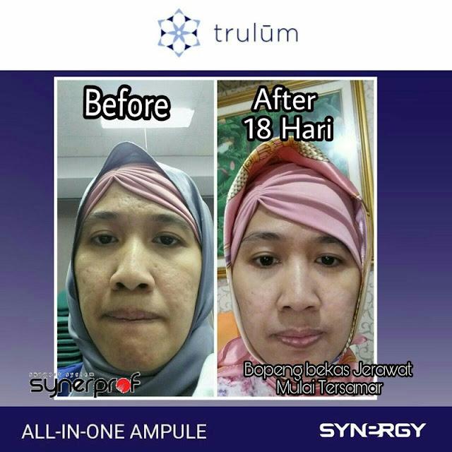 Jual Trulum Serum Anti Aging Di Woyla Aceh Barat